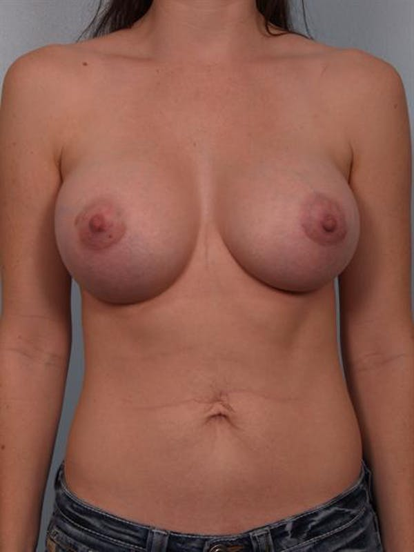 Breast Augmentation Gallery - Patient 1310719 - Image 2