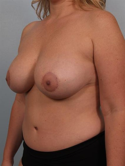 Mommy Makeover Gallery - Patient 1310715 - Image 6