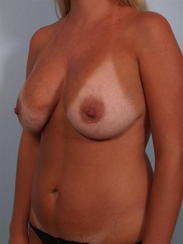 Breast Lift Gallery - Patient 1310717 - Image 5