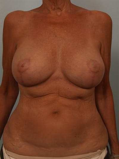 Complex Breast Revision Gallery - Patient 1310718 - Image 2