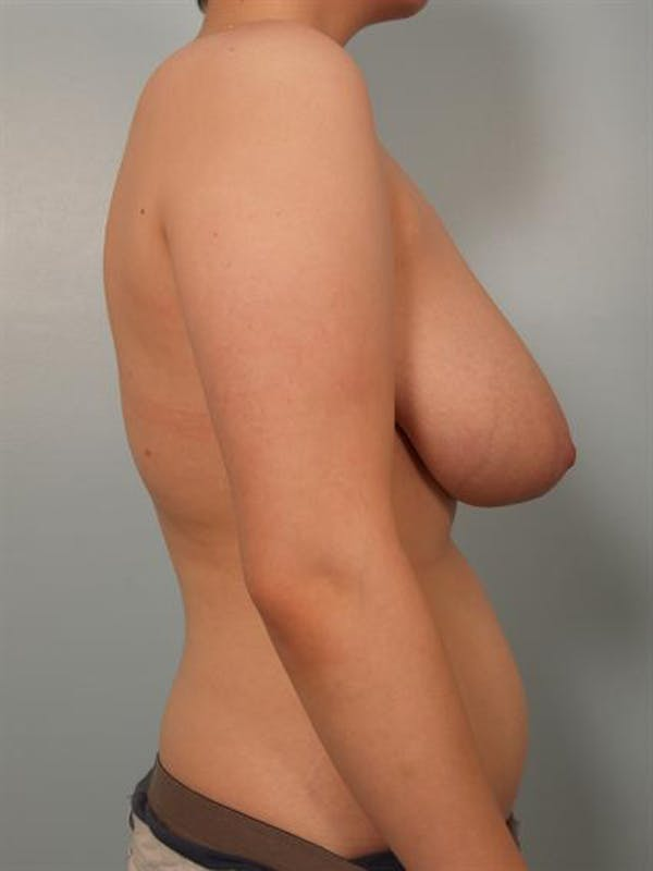 Breast Reduction Gallery - Patient 1310720 - Image 3