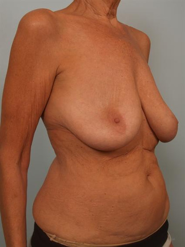 Complex Breast Revision Gallery - Patient 1310718 - Image 3