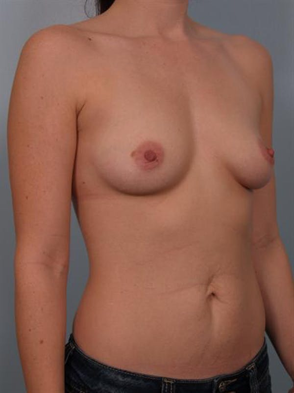 Breast Augmentation Gallery - Patient 1310719 - Image 3