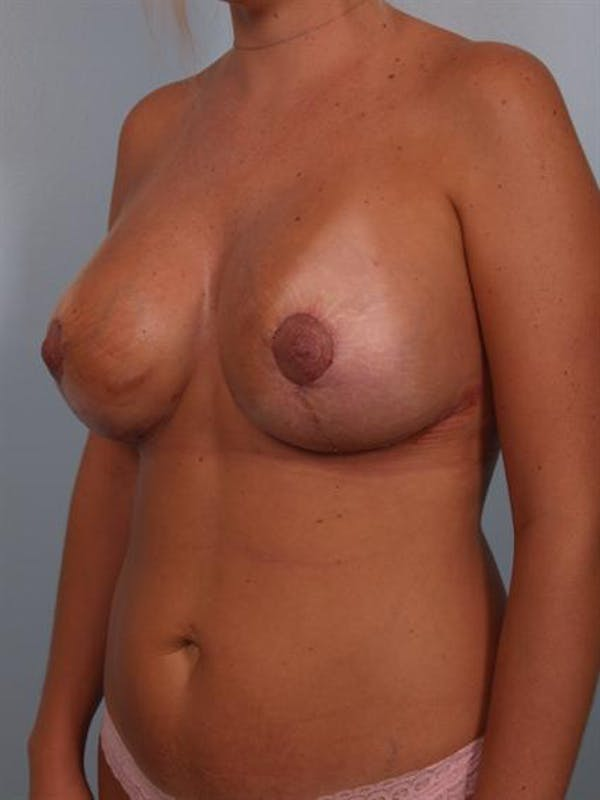 Breast Lift Gallery - Patient 1310717 - Image 6