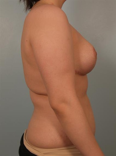 Breast Reduction Gallery - Patient 1310720 - Image 4