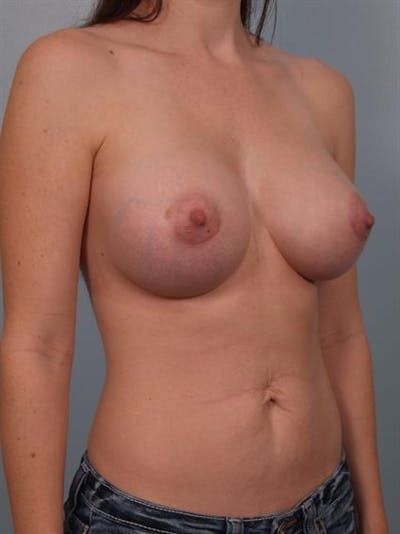 Breast Augmentation Gallery - Patient 1310719 - Image 4
