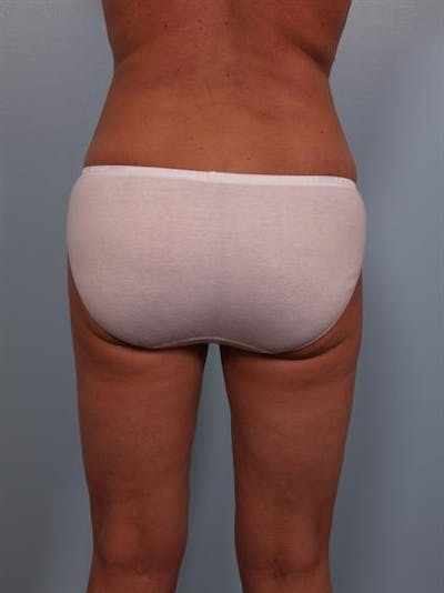 Power Assisted Liposuction Gallery - Patient 1310716 - Image 8