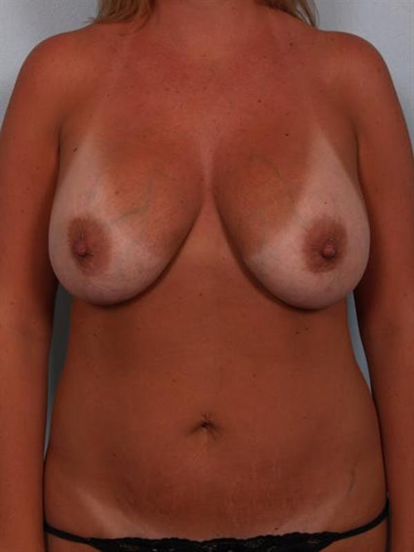 Breast Lift Gallery - Patient 1310717 - Image 1