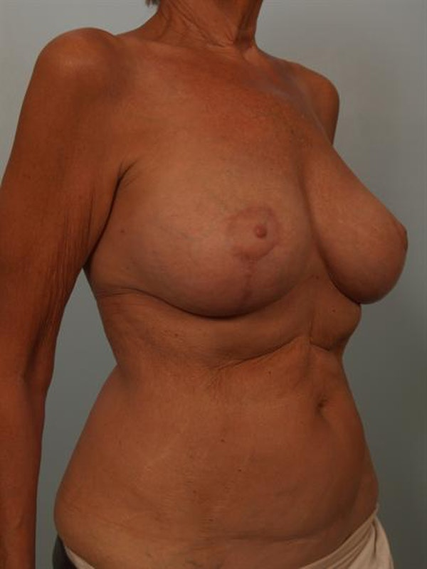 Complex Breast Revision Gallery - Patient 1310718 - Image 4