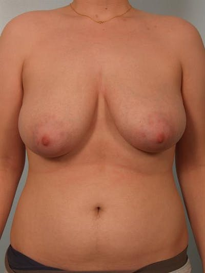 Breast Reduction Gallery - Patient 1310720 - Image 1