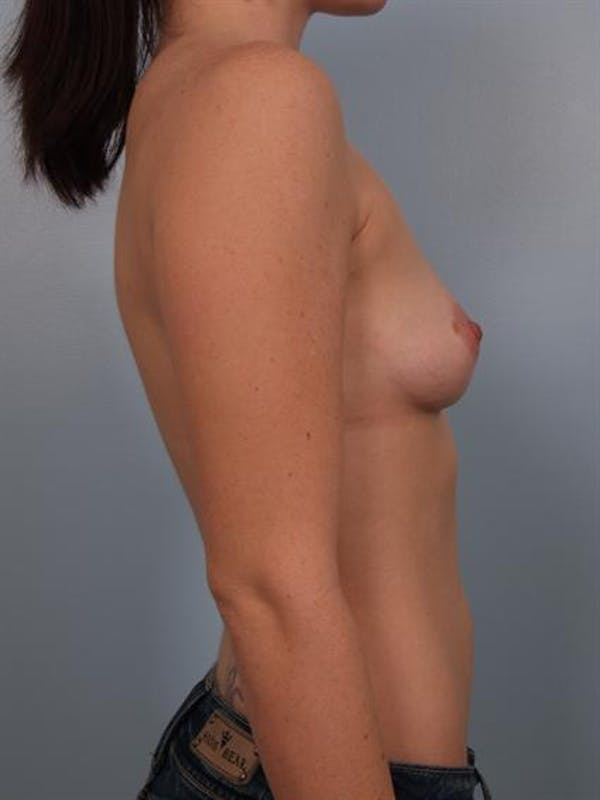 Breast Augmentation Gallery - Patient 1310719 - Image 5