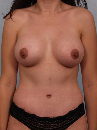 Mommy Makeover Gallery - Patient 1310721 - Image 2