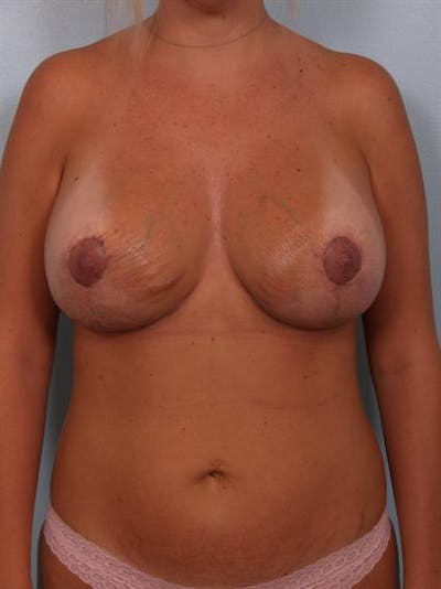 Breast Lift Gallery - Patient 1310717 - Image 2
