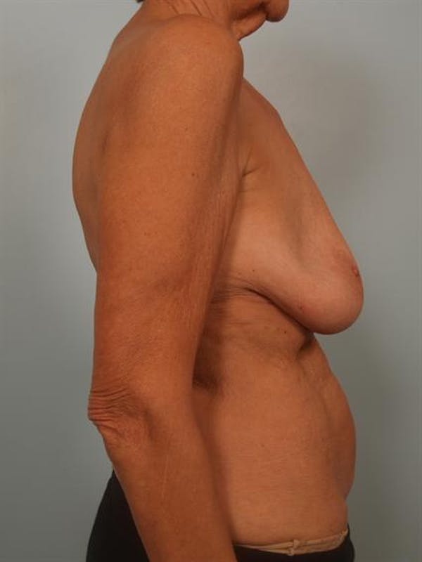 Complex Breast Revision Gallery - Patient 1310718 - Image 5