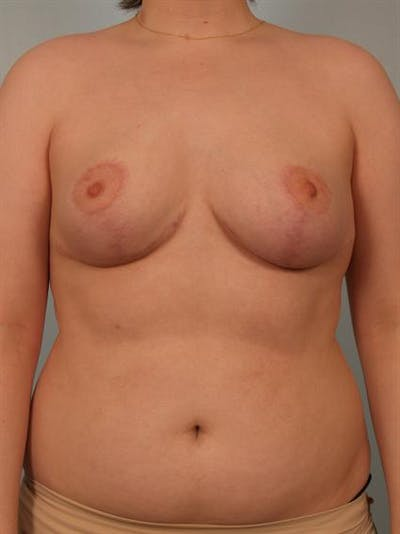 Breast Reduction Gallery - Patient 1310720 - Image 2
