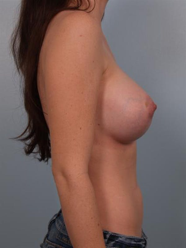 Breast Augmentation Gallery - Patient 1310719 - Image 6