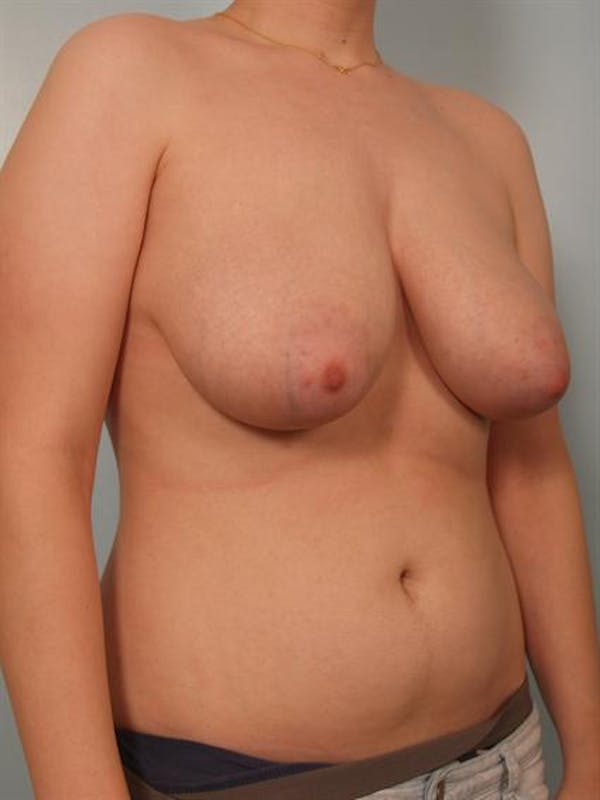 Breast Reduction Gallery - Patient 1310720 - Image 5