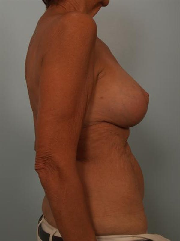 Complex Breast Revision Gallery - Patient 1310718 - Image 6