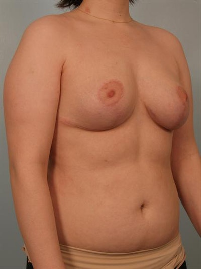 Breast Reduction Gallery - Patient 1310720 - Image 6