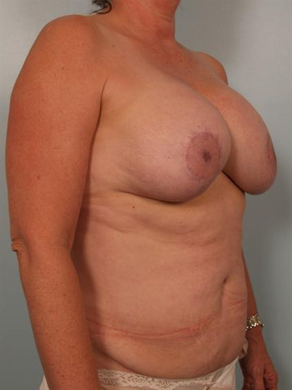 Breast Lift Gallery - Patient 1310723 - Image 3