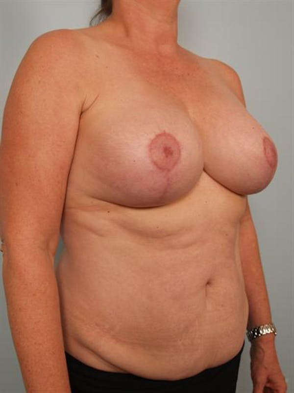 Breast Lift Gallery - Patient 1310723 - Image 4