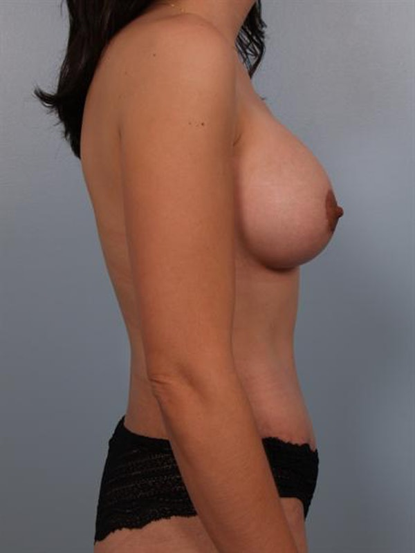 Mommy Makeover Gallery - Patient 1310721 - Image 6