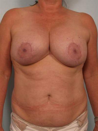 Breast Lift Gallery - Patient 1310723 - Image 1