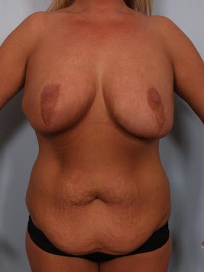 Breast Reduction Gallery - Patient 1310726 - Image 1