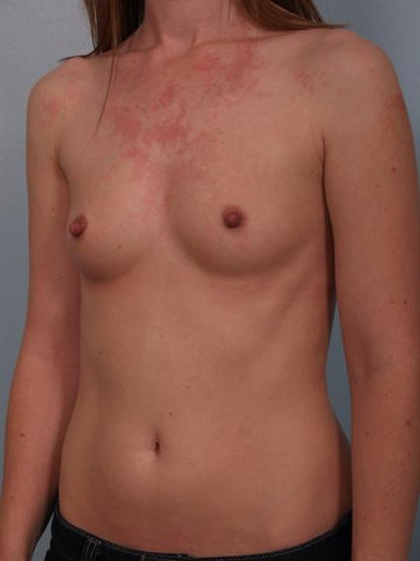Breast Augmentation Gallery - Patient 1310727 - Image 1
