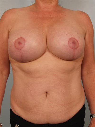 Breast Lift Gallery - Patient 1310723 - Image 2