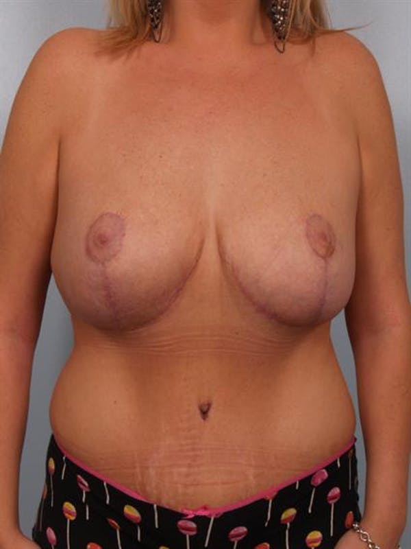Breast Reduction Gallery - Patient 1310726 - Image 2