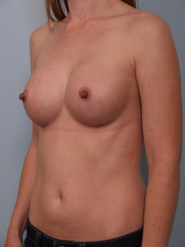 Breast Augmentation Gallery - Patient 1310727 - Image 2