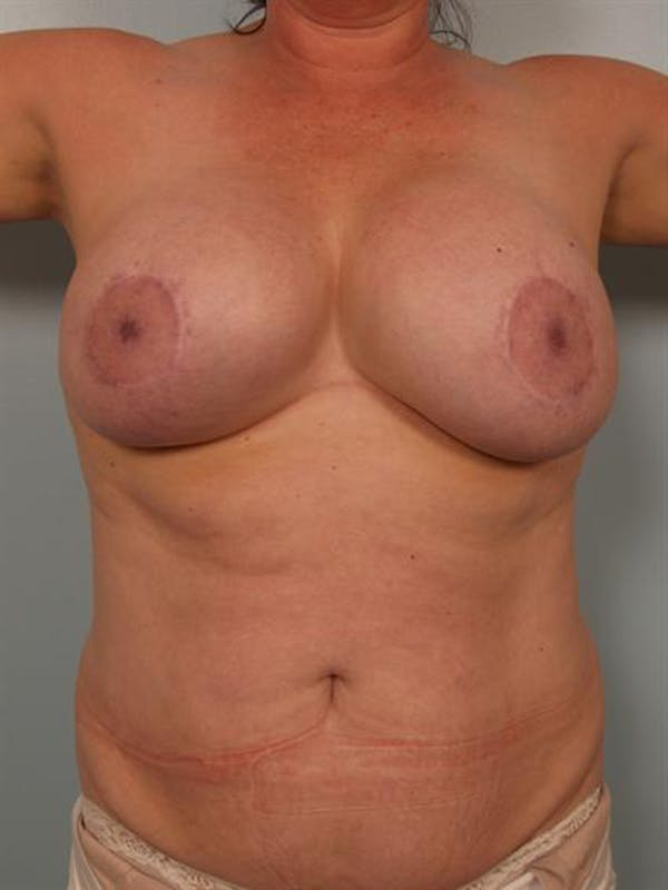 Breast Lift Gallery - Patient 1310723 - Image 5
