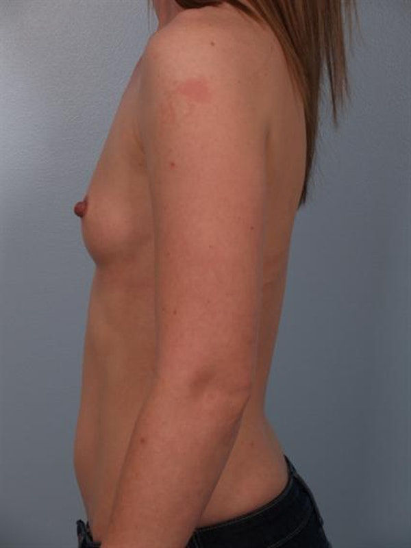 Breast Augmentation Gallery - Patient 1310727 - Image 3