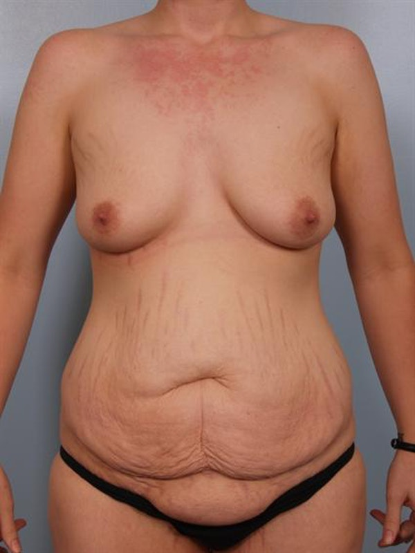 Mommy Makeover Gallery - Patient 1310725 - Image 1