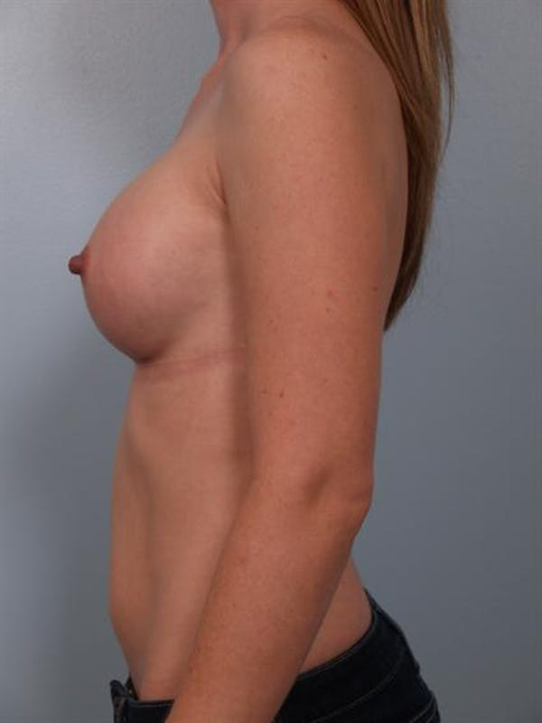 Breast Augmentation Gallery - Patient 1310727 - Image 4
