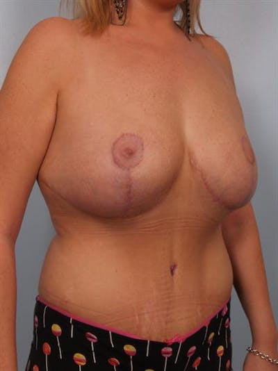 Breast Reduction Gallery - Patient 1310726 - Image 4