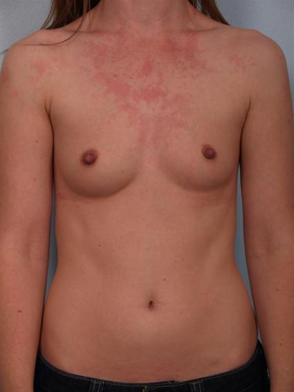 Breast Augmentation Gallery - Patient 1310727 - Image 5