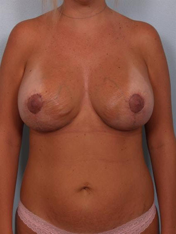 Complex Breast Revision Gallery - Patient 1310724 - Image 2