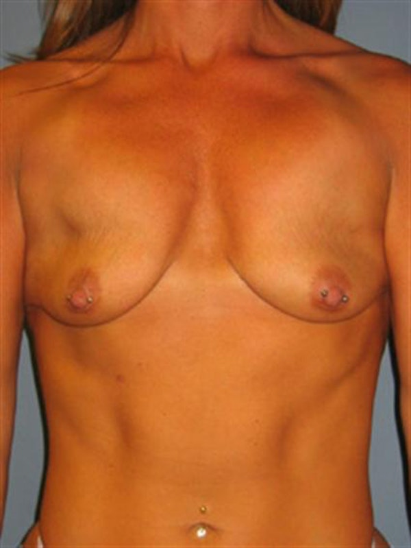 Breast Lift Gallery - Patient 1310730 - Image 1
