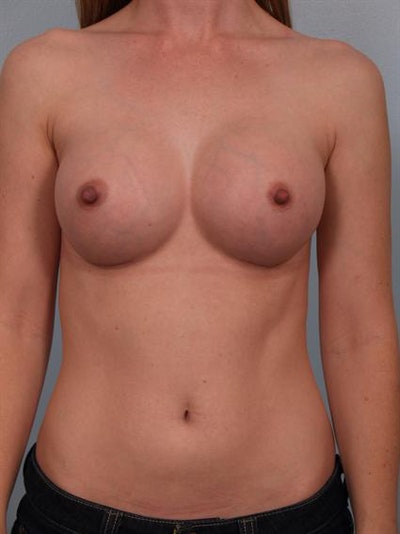 Breast Augmentation Gallery - Patient 1310727 - Image 6