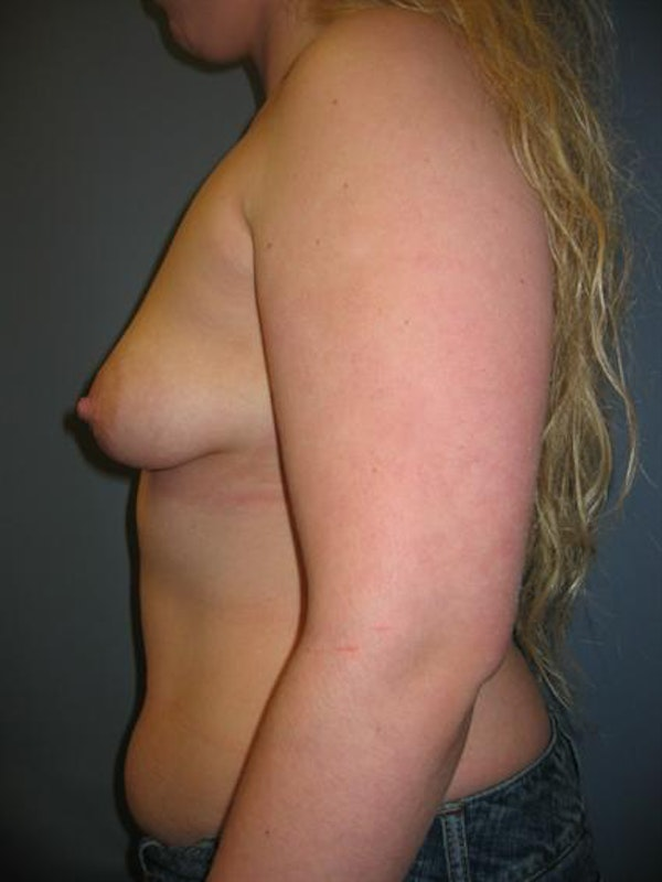 Power Assisted Liposuction Gallery - Patient 1310728 - Image 5
