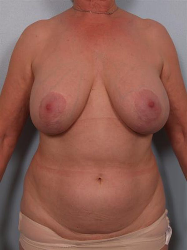 Complex Breast Revision Gallery - Patient 1310729 - Image 1