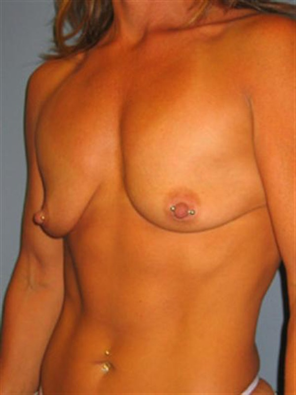 Breast Lift Gallery - Patient 1310730 - Image 3