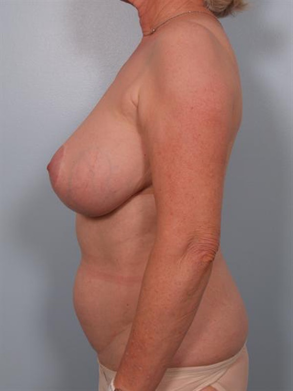 Complex Breast Revision Gallery - Patient 1310729 - Image 3