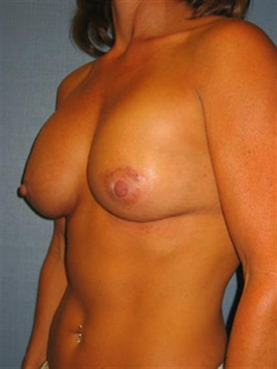 Breast Lift Gallery - Patient 1310730 - Image 4