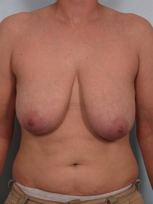 Breast Reduction Gallery - Patient 1310731 - Image 1