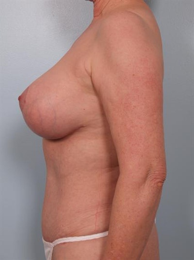 Complex Breast Revision Gallery - Patient 1310729 - Image 4