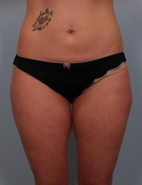 Power Assisted Liposuction Gallery - Patient 1310728 - Image 8