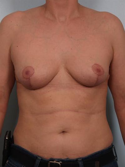 Breast Reduction Gallery - Patient 1310731 - Image 2